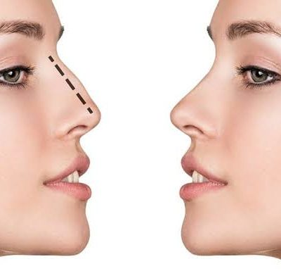 3 Tips For Preparing For Cosmetic Surgery On Your Nose
