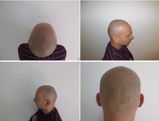 File:Scalp Micropigmentation Results.png - Wikimedia Commons
