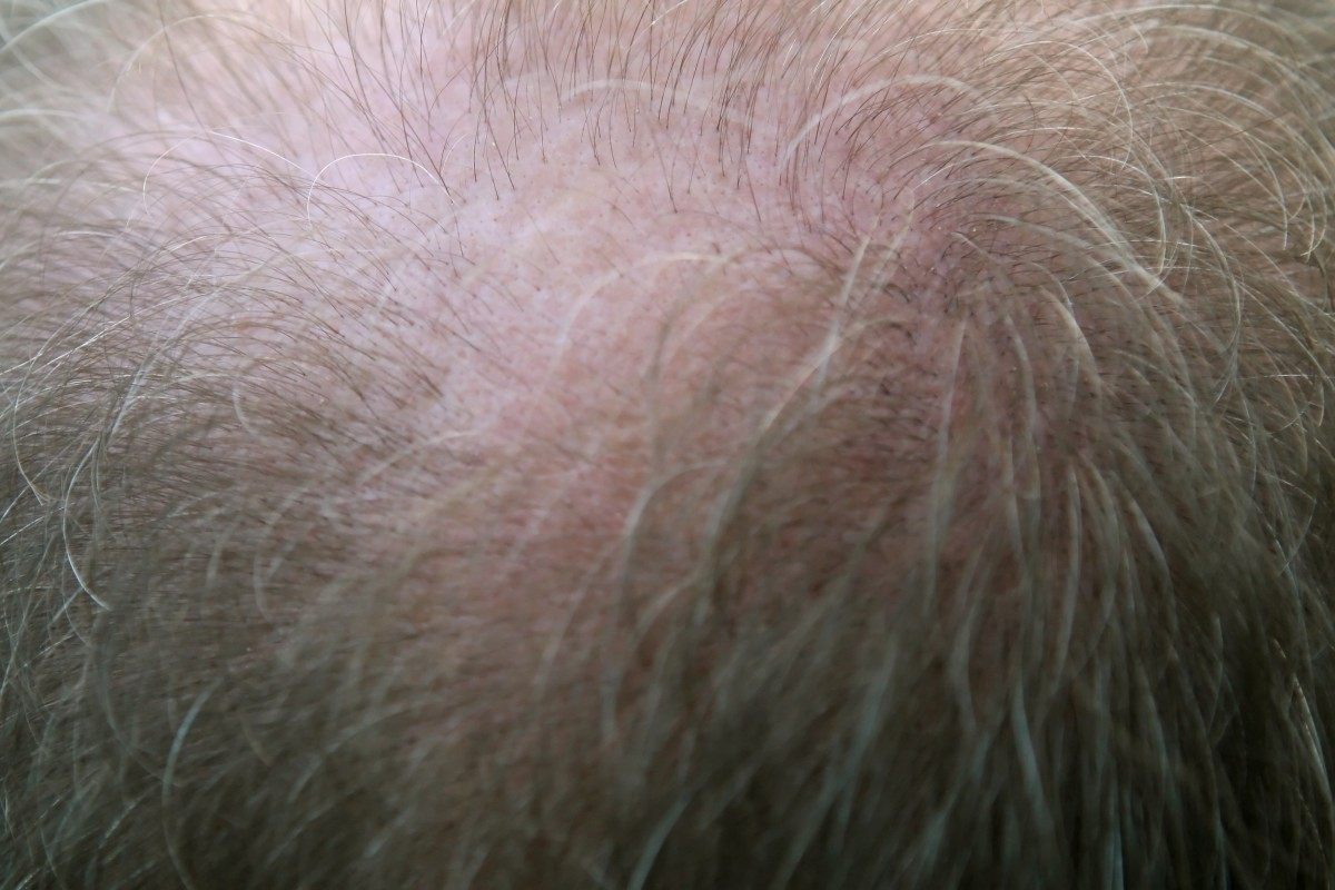 man, person, people, hair, old, male, fur, mane, gray, ear, parent, close up, crown, patch, bald, dad, nose, grey, grand, gentleman, eye, head, balding, grandfather, grandpa, skin, senior, organ, older, elderly, loss, adult, spot, grandparent, grown up, parental, folicle, granddad, grownup, hairloss
